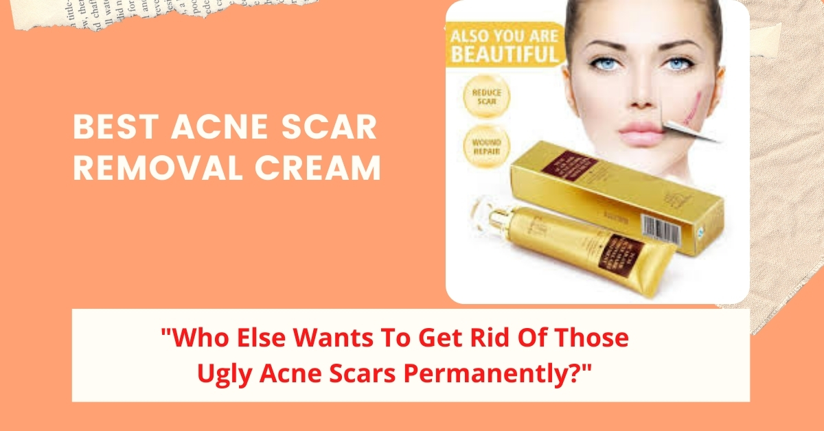 Best Acne Scar Removal Cream – The Answer to Your Problem