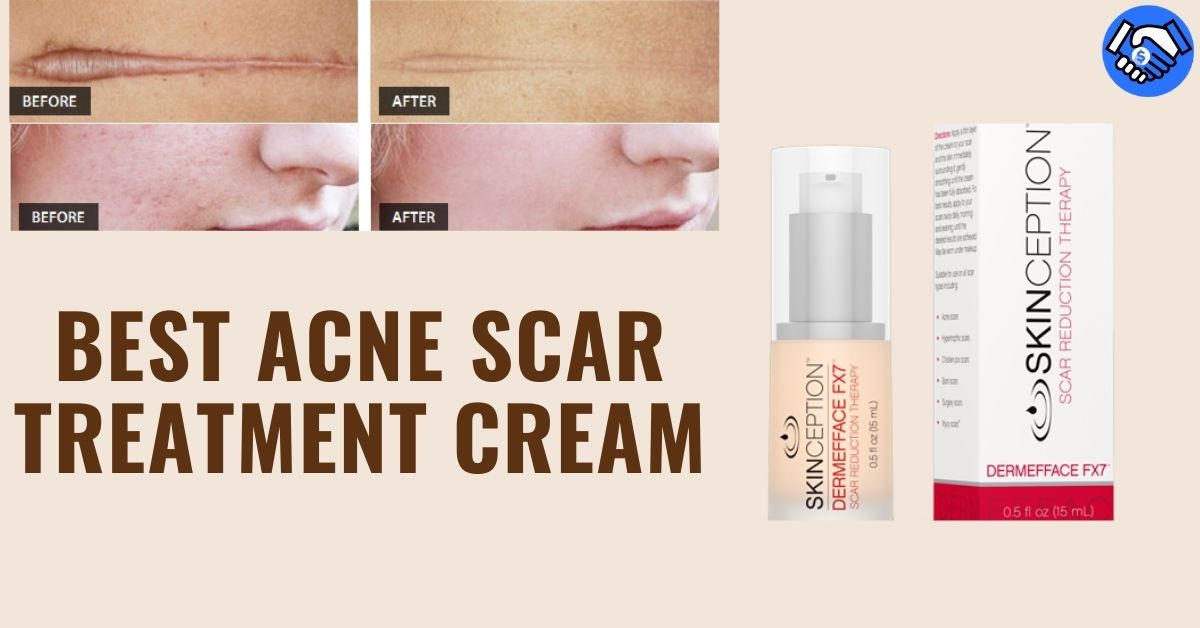 Best Acne Scar Treatment Cream 2021